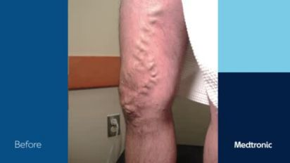 mâncărime pielea picioarelor în piciorul varicos semne varicoase pentru sarcină